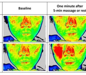 Science behind the face massage rollers – ScienceDaily